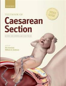 Textbook of Caesarean Section