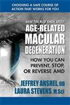What You Must Know About Age-Related Macular Degenration: How You Can Prevent, Stop, or Reverse Amd